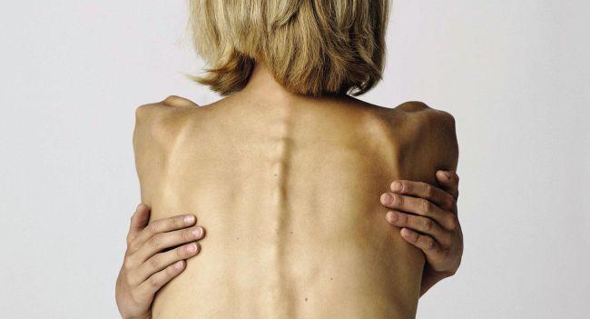 Размышления об анорексии через призму гештальт